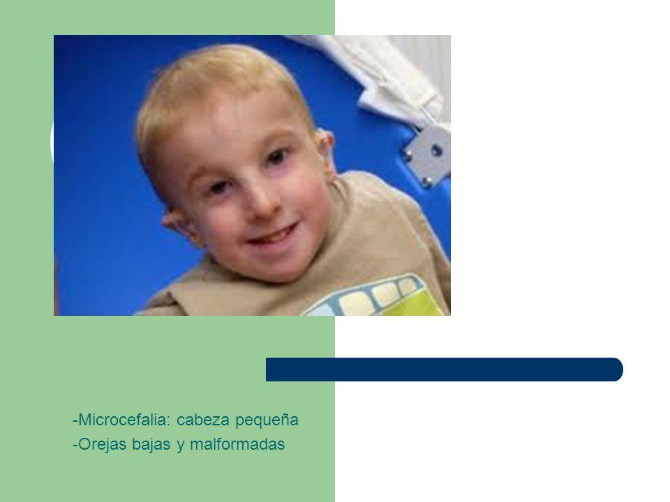 -Microcefalia: cabeza pequeña -Orejas bajas y malformadas