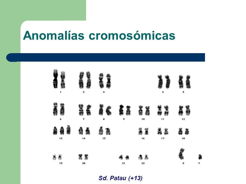 Sd. Patau (+13) Anomalías cromosómicas