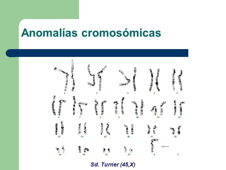 Sd. Turner (45,X) Anomalías cromosómicas