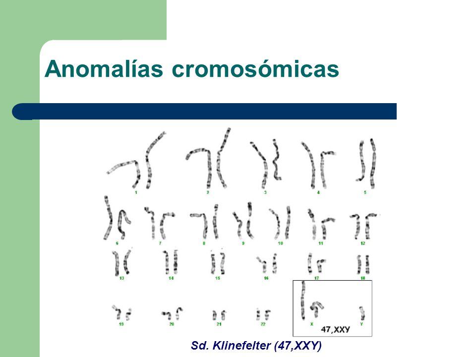 Sd. Klinefelter (47,XXY) Anomalías cromosómicas