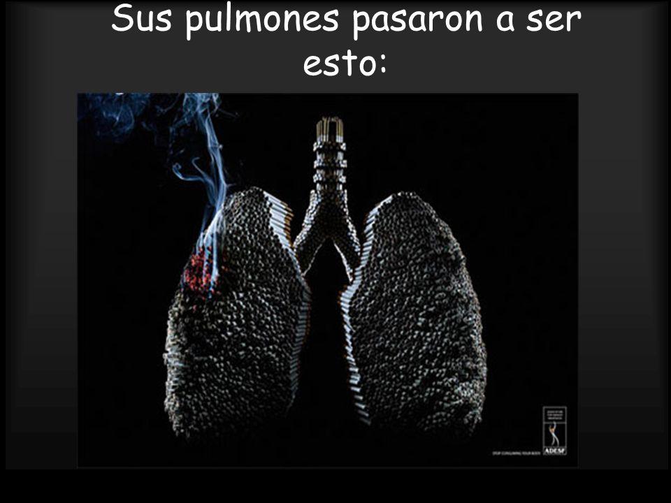 Sus pulmones pasaron a ser esto: