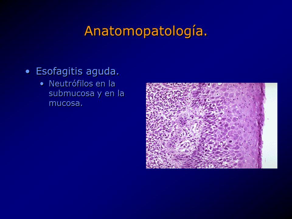 Anatomopatología. Esofagitis aguda. Neutrófilos en la submucosa y en la mucosa. Esofagitis aguda. Neutrófilos en la submucosa y en la mucosa.
