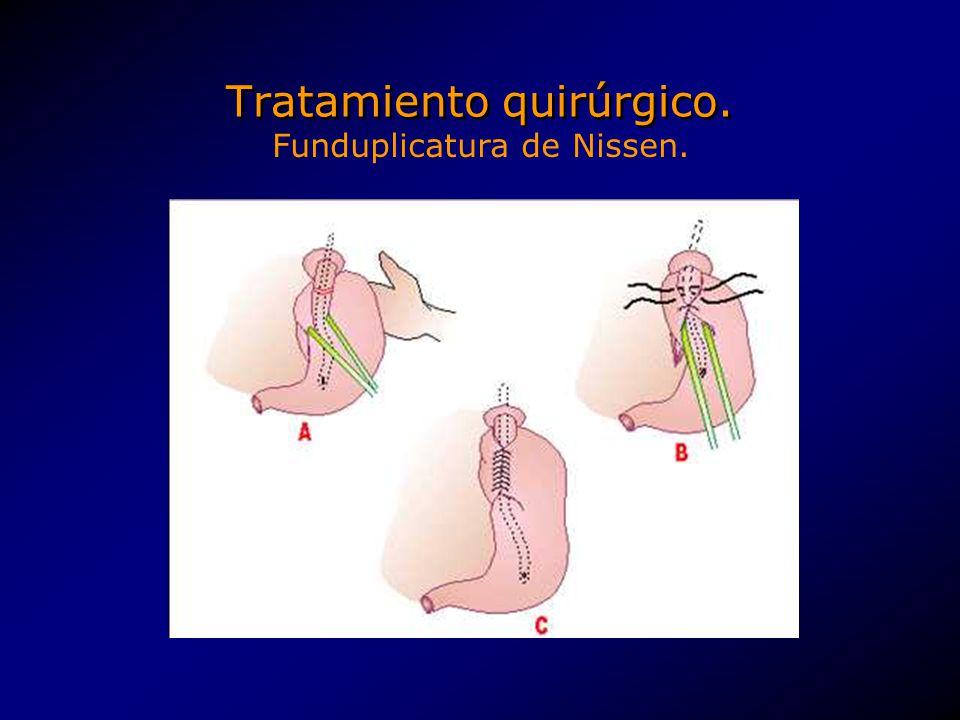 Tratamiento quirúrgico. Funduplicatura de Nissen.