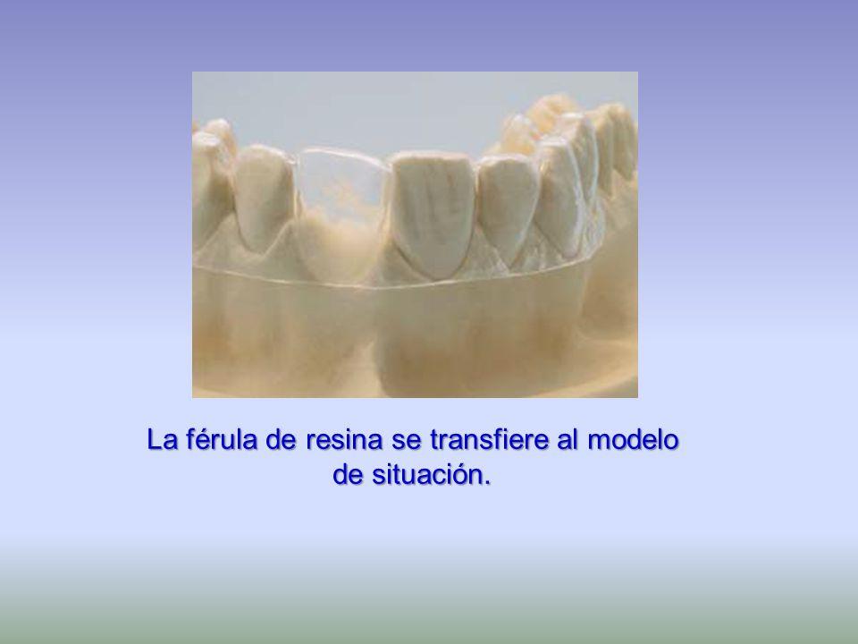 La férula de resina se transfiere al modelo de situación.