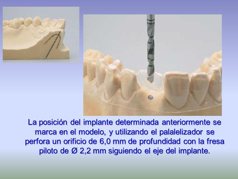 La posición del implante determinada anteriormente se marca en el modelo, y utilizando el palalelizador se perfora un orificio de 6,0 mm de profundida