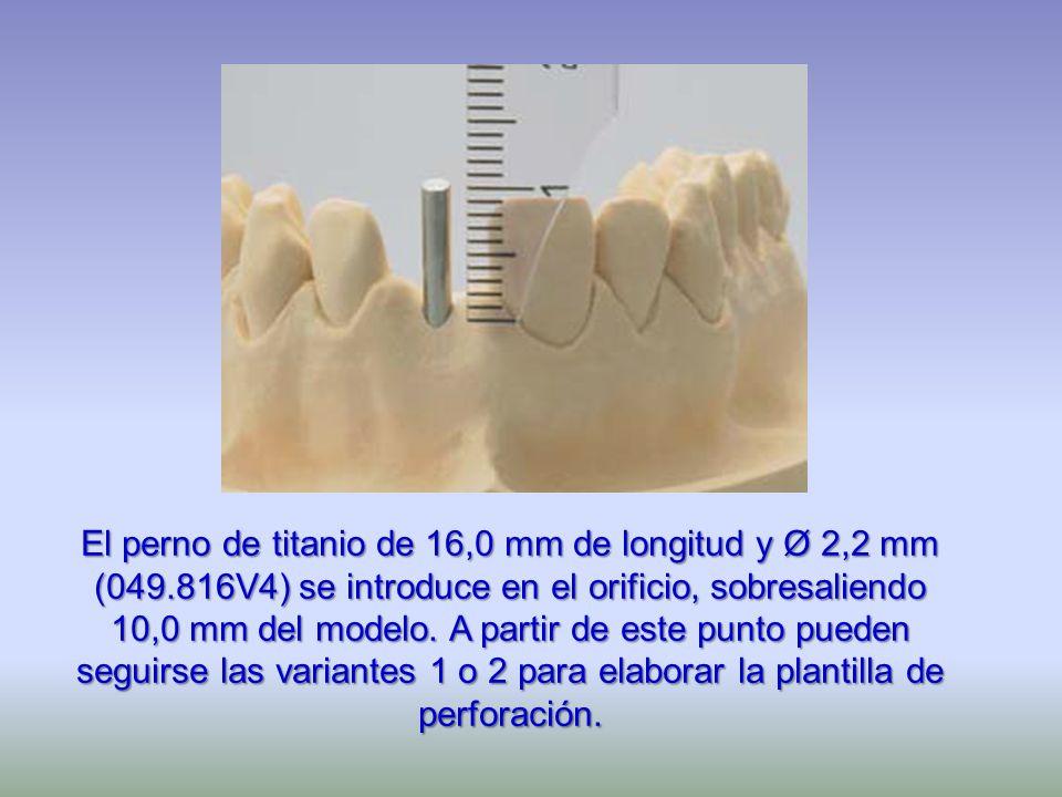 El perno de titanio de 16,0 mm de longitud y Ø 2,2 mm (049.816V4) se introduce en el orificio, sobresaliendo 10,0 mm del modelo. A partir de este punt
