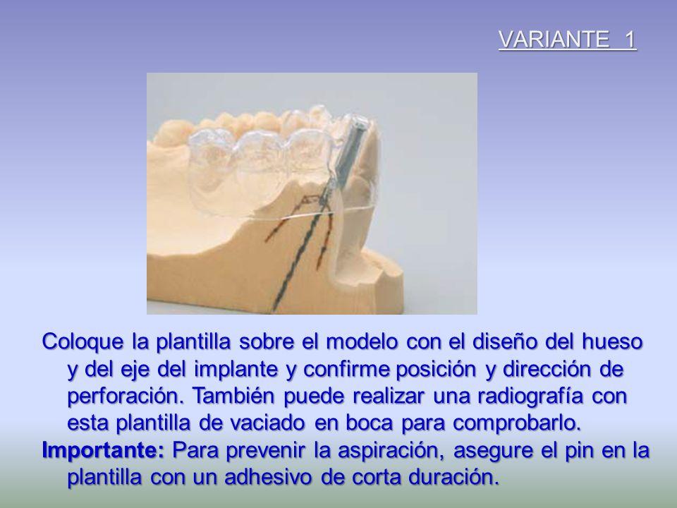 VARIANTE 1 Coloque la plantilla sobre el modelo con el diseño del hueso y del eje del implante y confirme posición y dirección de perforación. También