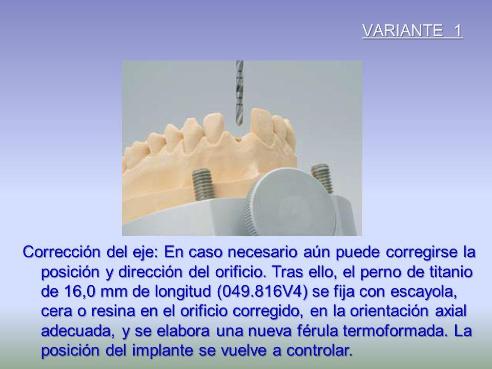VARIANTE 1 Corrección del eje: En caso necesario aún puede corregirse la posición y dirección del orificio. Tras ello, el perno de titanio de 16,0 mm