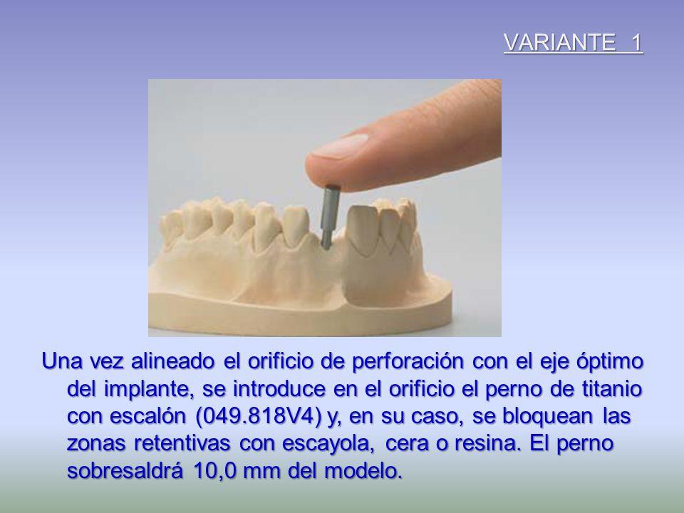 VARIANTE 1 Una vez alineado el orificio de perforación con el eje óptimo del implante, se introduce en el orificio el perno de titanio con escalón (04