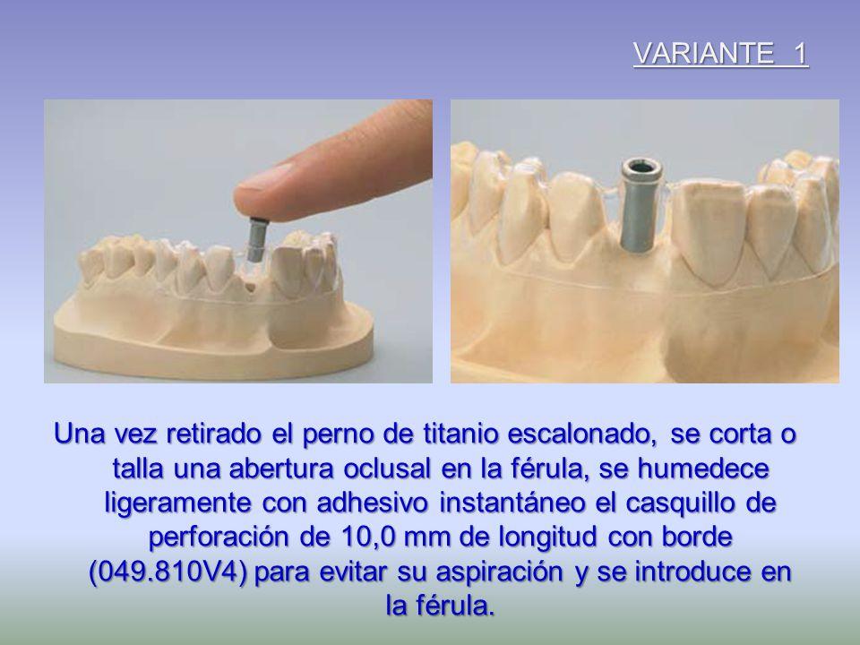 VARIANTE 1 Una vez retirado el perno de titanio escalonado, se corta o talla una abertura oclusal en la férula, se humedece ligeramente con adhesivo i