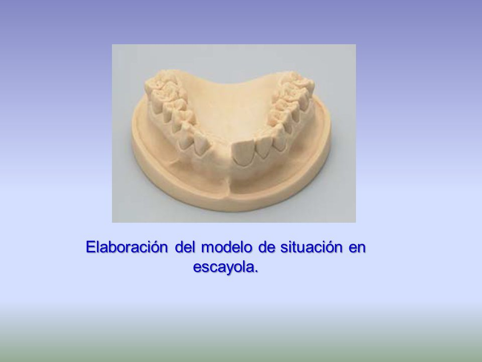 Elaboración del modelo de situación en escayola.