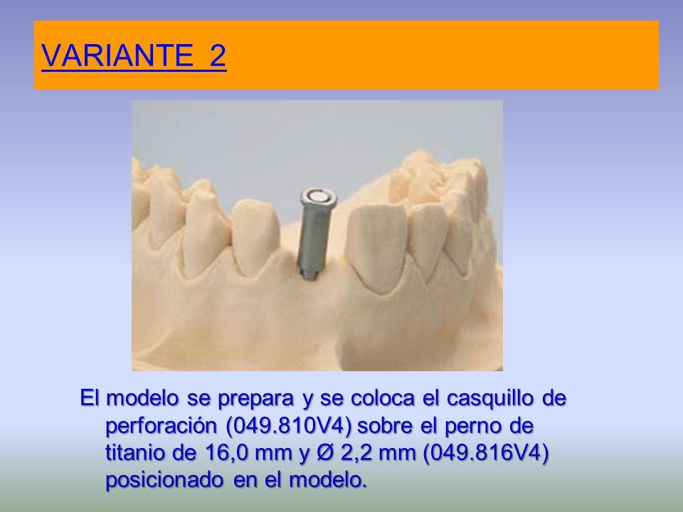 VARIANTE 2 El modelo se prepara y se coloca el casquillo de perforación (049.810V4) sobre el perno de titanio de 16,0 mm y Ø 2,2 mm (049.816V4) posici