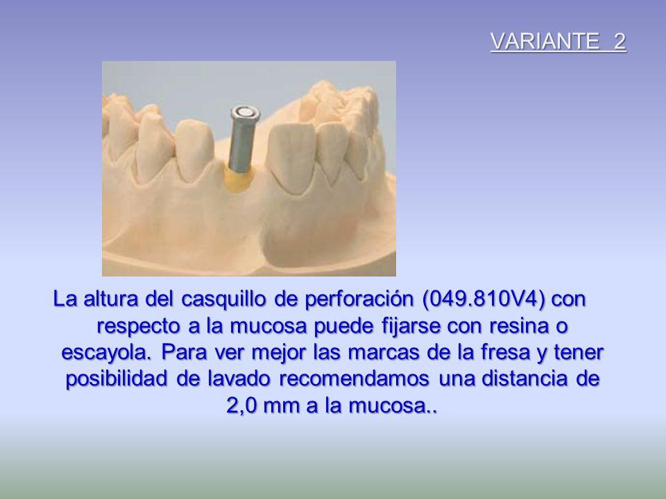 VARIANTE 2 La altura del casquillo de perforación (049.810V4) con respecto a la mucosa puede fijarse con resina o escayola. Para ver mejor las marcas