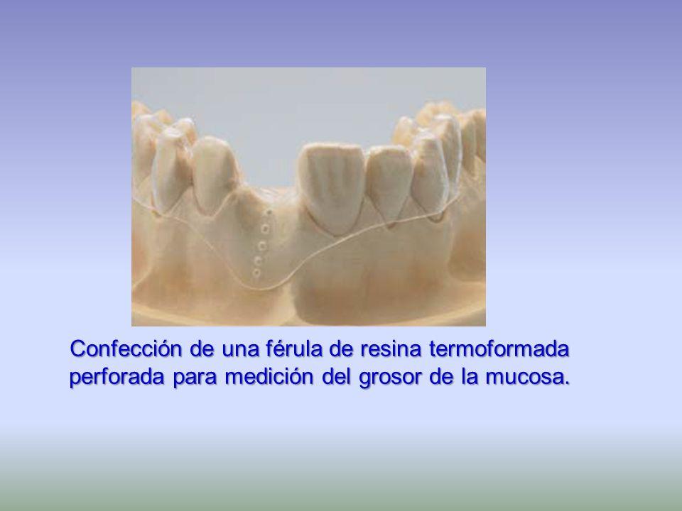 Confección de una férula de resina termoformada perforada para medición del grosor de la mucosa.