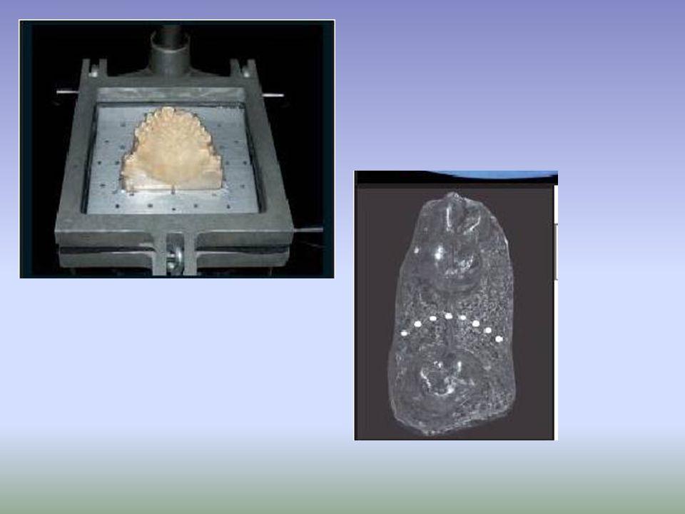 Medición en boca del grosor de la mucosa y el perfil óseo (Bone Mapping) mediante una sonda periodontal con tope de goma.
