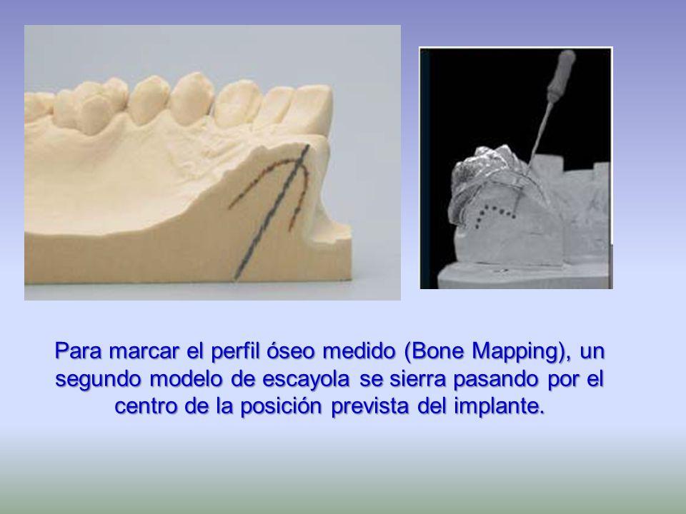 Para marcar el perfil óseo medido (Bone Mapping), un segundo modelo de escayola se sierra pasando por el centro de la posición prevista del implante.