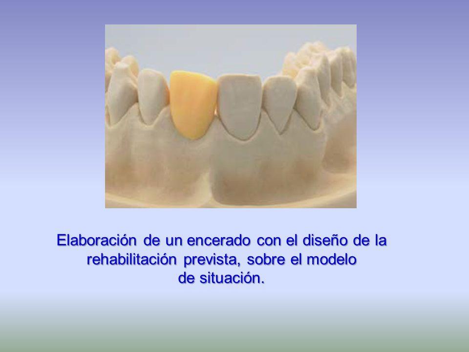 Elaboración de un encerado con el diseño de la rehabilitación prevista, sobre el modelo de situación.