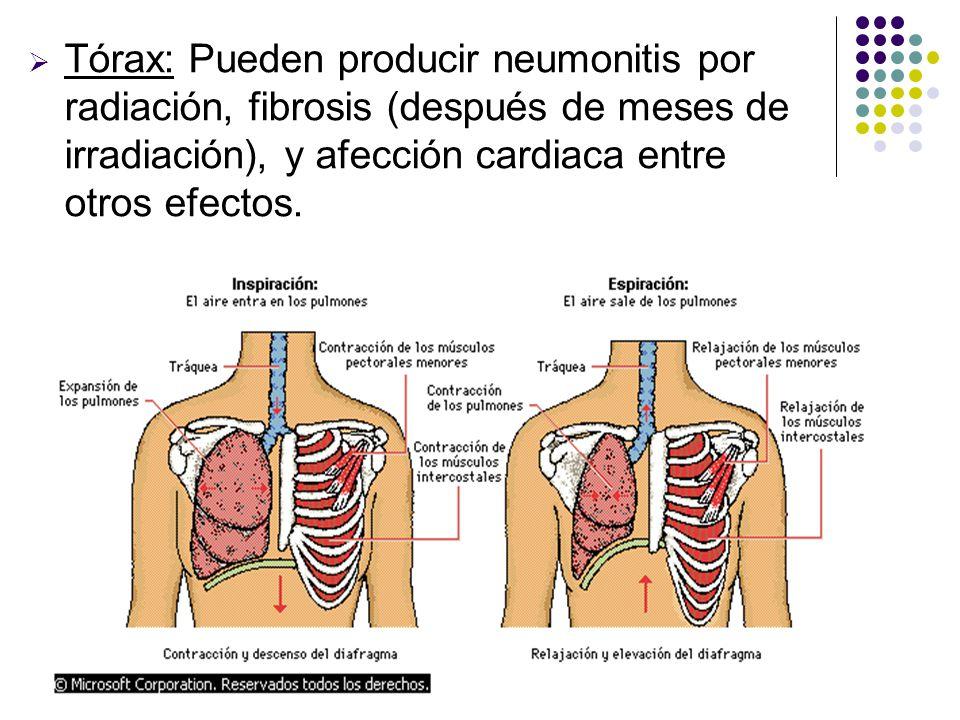 Tórax: Pueden producir neumonitis por radiación, fibrosis (después de meses de irradiación), y afección cardiaca entre otros efectos.
