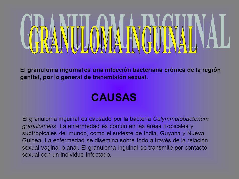 El granuloma inguinal es una infección bacteriana crónica de la región genital, por lo general de transmisión sexual.