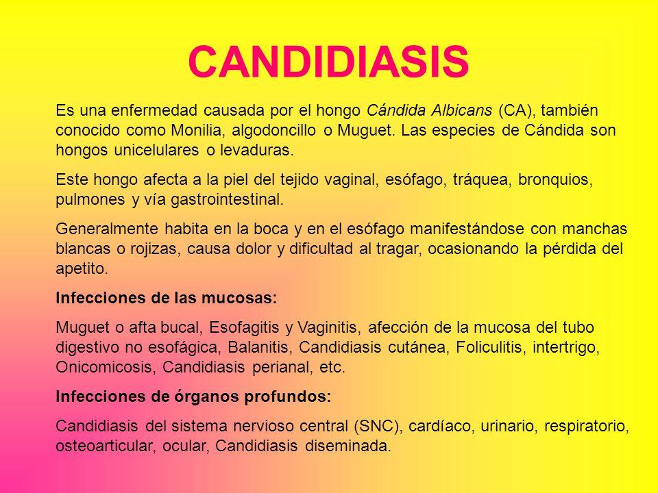 CANDIDIASIS Es una enfermedad causada por el hongo Cándida Albicans (CA), también conocido como Monilia, algodoncillo o Muguet.