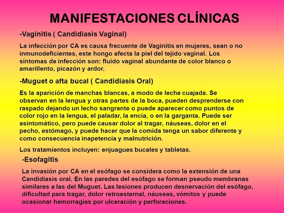 MANIFESTACIONES CLÍNICAS -Vaginitis ( Candidiasis Vaginal) La infección por CA es causa frecuente de Vaginitis en mujeres, sean o no inmunodeficientes, este hongo afecta la piel del tejido vaginal.