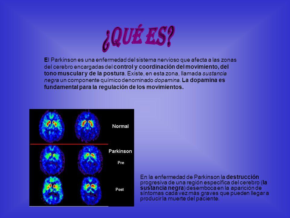 El Parkinson es una enfermedad del sistema nervioso que afecta a las zonas del cerebro encargadas del control y coordinación del movimiento, del tono