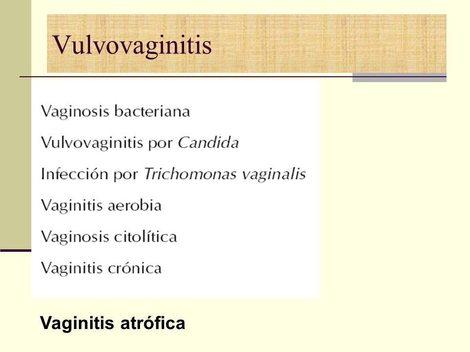 Vaginitis atrófica Vulvovaginitis