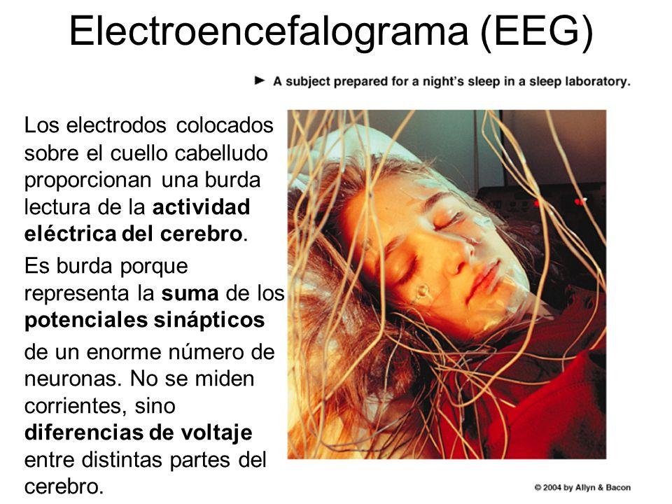 Electroencefalograma (EEG) Los electrodos colocados sobre el cuello cabelludo proporcionan una burda lectura de la actividad eléctrica del cerebro.