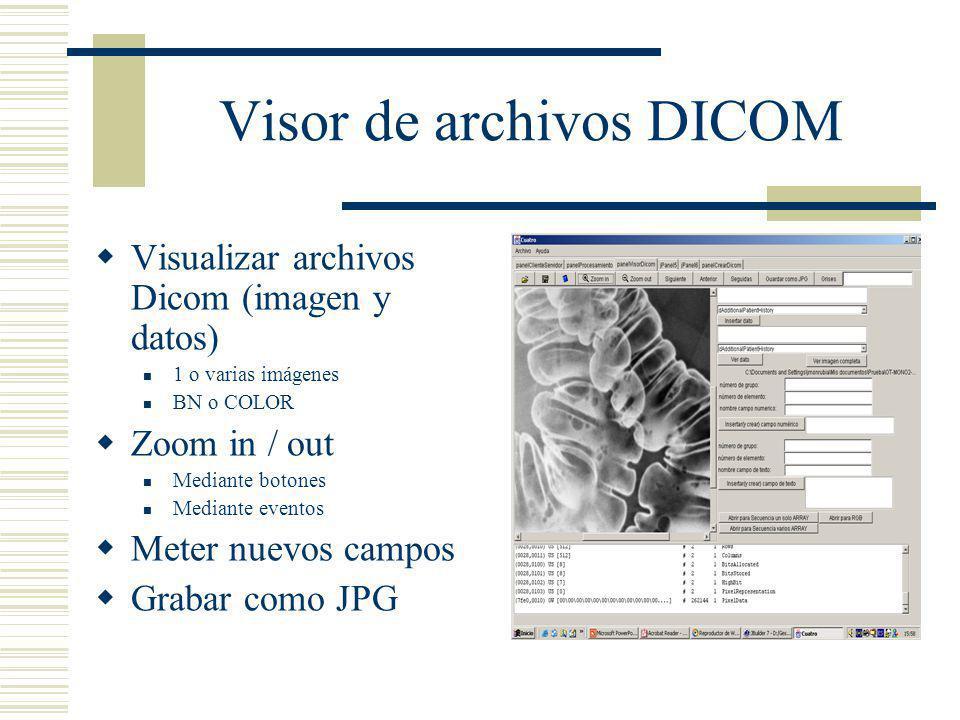 Visor de archivos DICOM Visualizar archivos Dicom (imagen y datos) 1 o varias imágenes BN o COLOR Zoom in / out Mediante botones Mediante eventos Mete