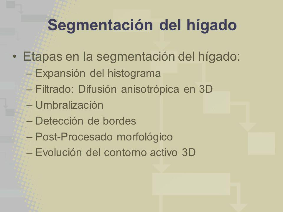 Segmentación del hígado Etapas en la segmentación del hígado: –Expansión del histograma –Filtrado: Difusión anisotrópica en 3D –Umbralización –Detección de bordes –Post-Procesado morfológico –Evolución del contorno activo 3D