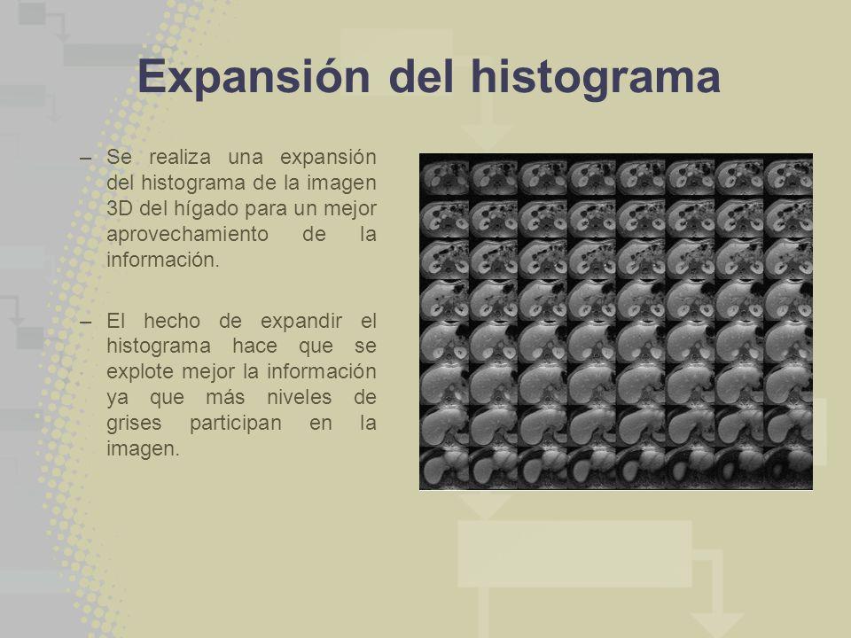 Expansión del histograma –Se realiza una expansión del histograma de la imagen 3D del hígado para un mejor aprovechamiento de la información. –El hech