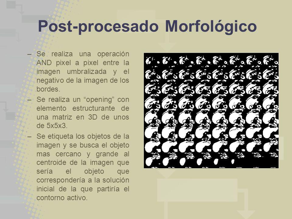 Post-procesado Morfológico –Se realiza una operación AND pixel a pixel entre la imagen umbralizada y el negativo de la imagen de los bordes. –Se reali