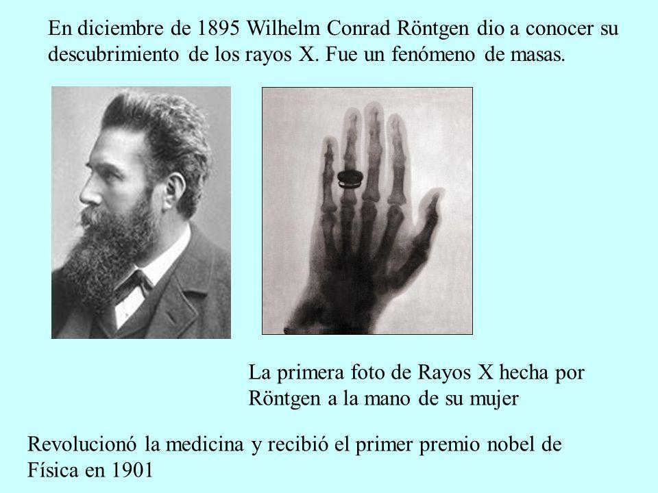 En diciembre de 1895 Wilhelm Conrad Röntgen dio a conocer su descubrimiento de los rayos X. Fue un fenómeno de masas. La primera foto de Rayos X hecha