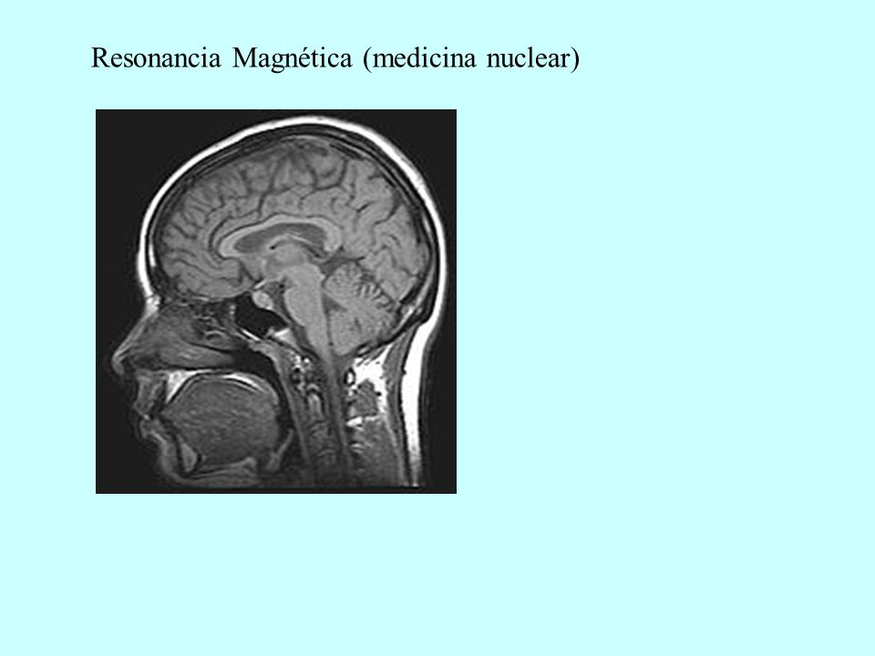 Resonancia Magnética (medicina nuclear)