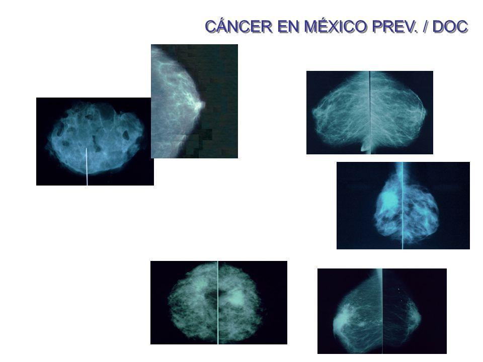 CÁNCER EN MÉXICO PREV. / DOC
