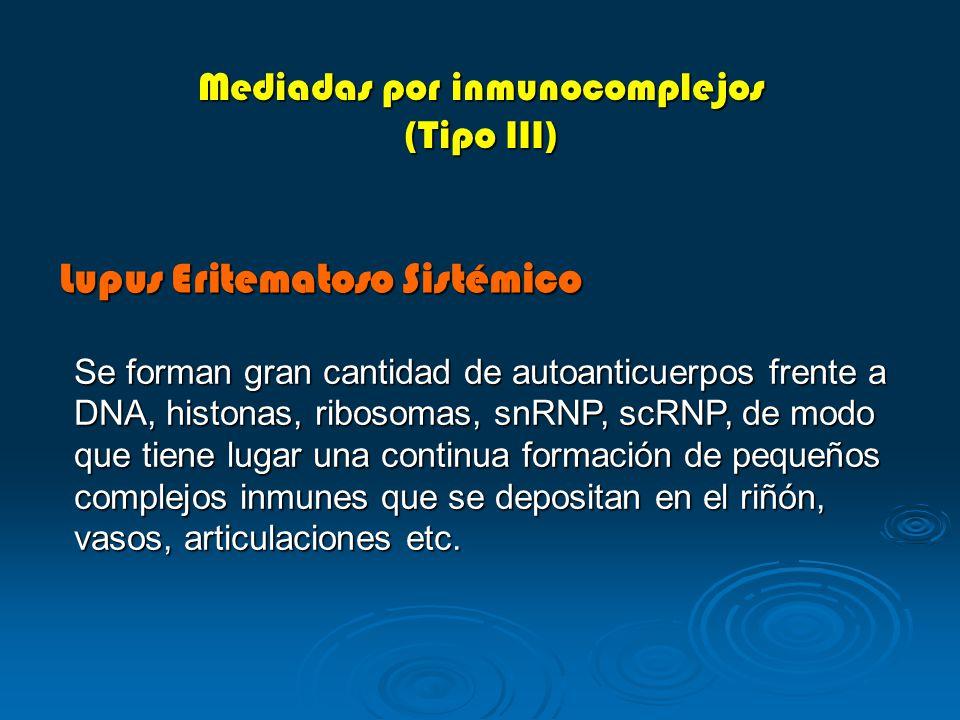 Lupus Eritematoso Sistémico Mediadas por inmunocomplejos (Tipo III) Se forman gran cantidad de autoanticuerpos frente a DNA, histonas, ribosomas, snRN