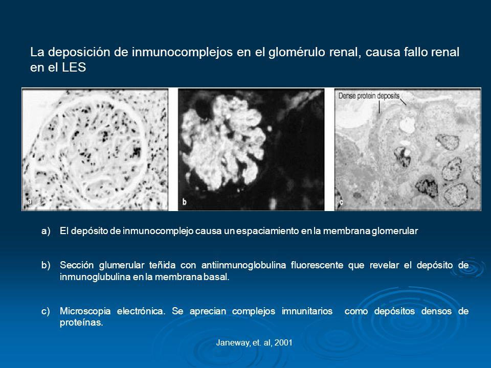 La deposición de inmunocomplejos en el glomérulo renal, causa fallo renal en el LES Janeway, et. al, 2001 a)El depósito de inmunocomplejo causa un esp