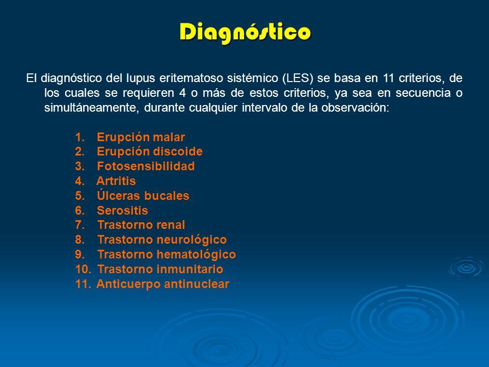 Diagnóstico El diagnóstico del lupus eritematoso sistémico (LES) se basa en 11 criterios, de los cuales se requieren 4 o más de estos criterios, ya se