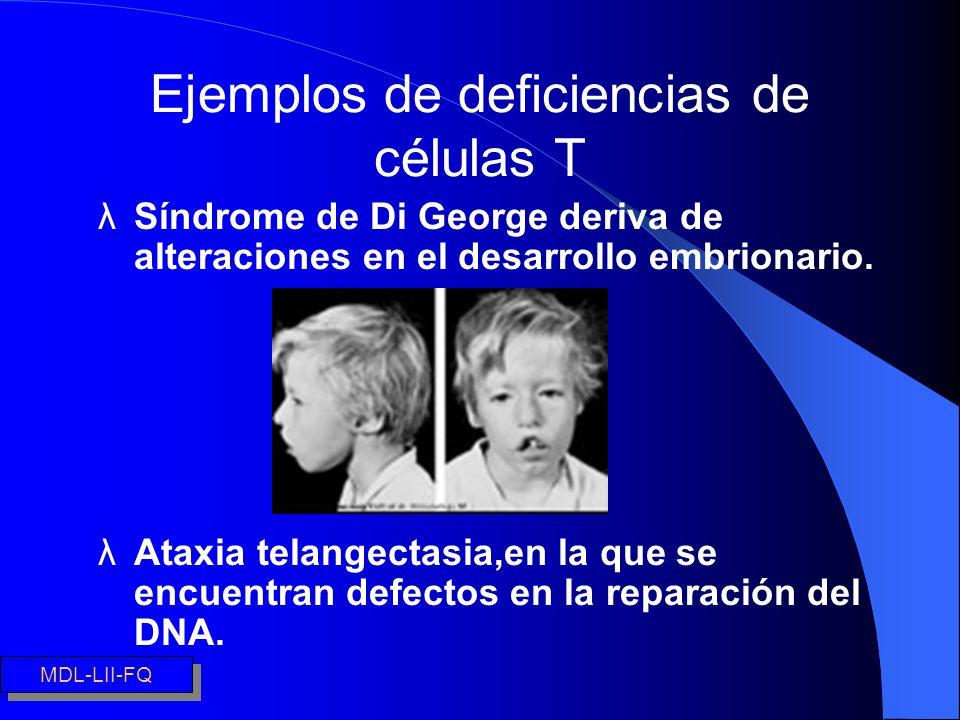 Ejemplos de deficiencias de células T λSíndrome de Di George deriva de alteraciones en el desarrollo embrionario. λAtaxia telangectasia,en la que se e