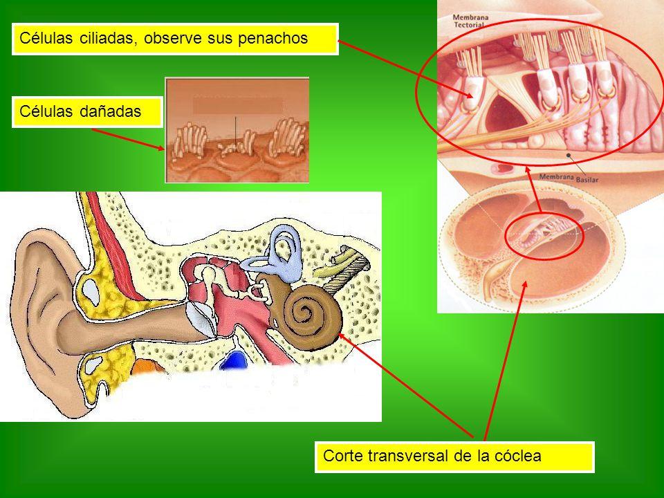 Corte transversal de la cóclea Células ciliadas, observe sus penachos Células dañadas