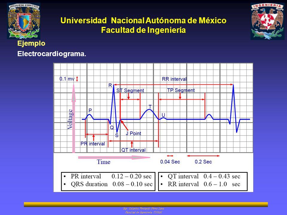 Universidad Nacional Autónoma de México Facultad de Ingeniería Ing. Catarino Fernando Pérez Lara Facultad de Ingeniería, UNAM Ejemplo Electrocardiogra