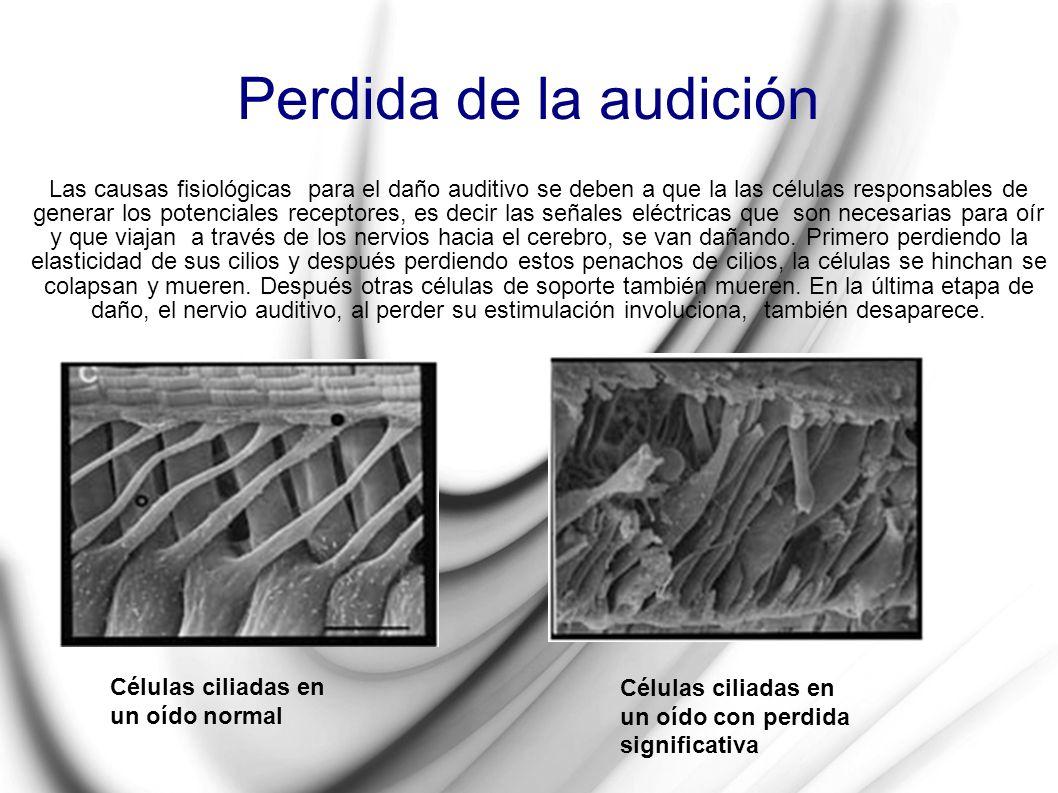 Perdida de la audición Las causas fisiológicas para el daño auditivo se deben a que la las células responsables de generar los potenciales receptores,