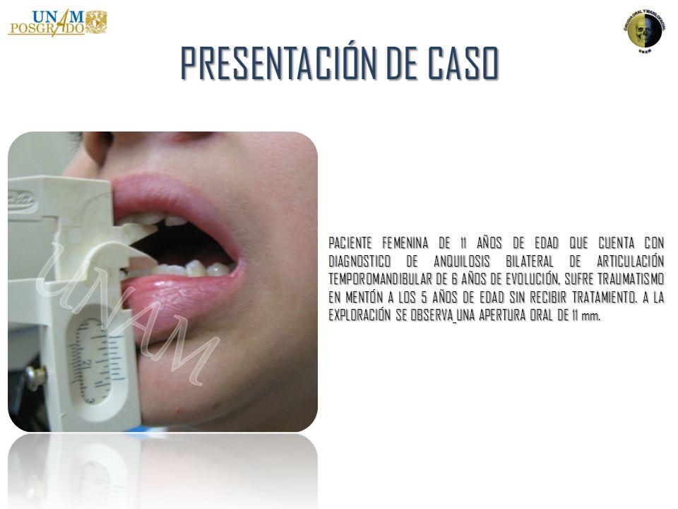 PRESENTACIÓN DE CASO SE REALIZA TOMOGRAFÍA COMPUTARIZADA MULTIDETECTOR CON CONTRASTE Y RECONSTRUCCIÓN EN TERCERA DIMENSIÓN DONDE SE OBSERVA ANQUILOSIS EN AMBAS ARTICULACIONES, DESVIACIÓN MEDIAL DE AMBOS PROCESOS CÓNDILARES CON LA PRESERVACIÓN DE DISCOS ARTICULARES, LA MASA ANQUILOTICA ABARCA DESDE CUELLO CONDILAR A CAVIDAD ARTICULAR Y EMINENCIA ARTICULAR DE TEMPORAL.