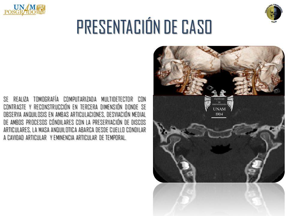PRESENTACIÓN DE CASO SE PLANIFICA PROCEDIMIENTO BAJO ANESTESIA GENERAL CON INTUBACIÓN NASOTRAQUEAL CON FIBROSCOPIA.