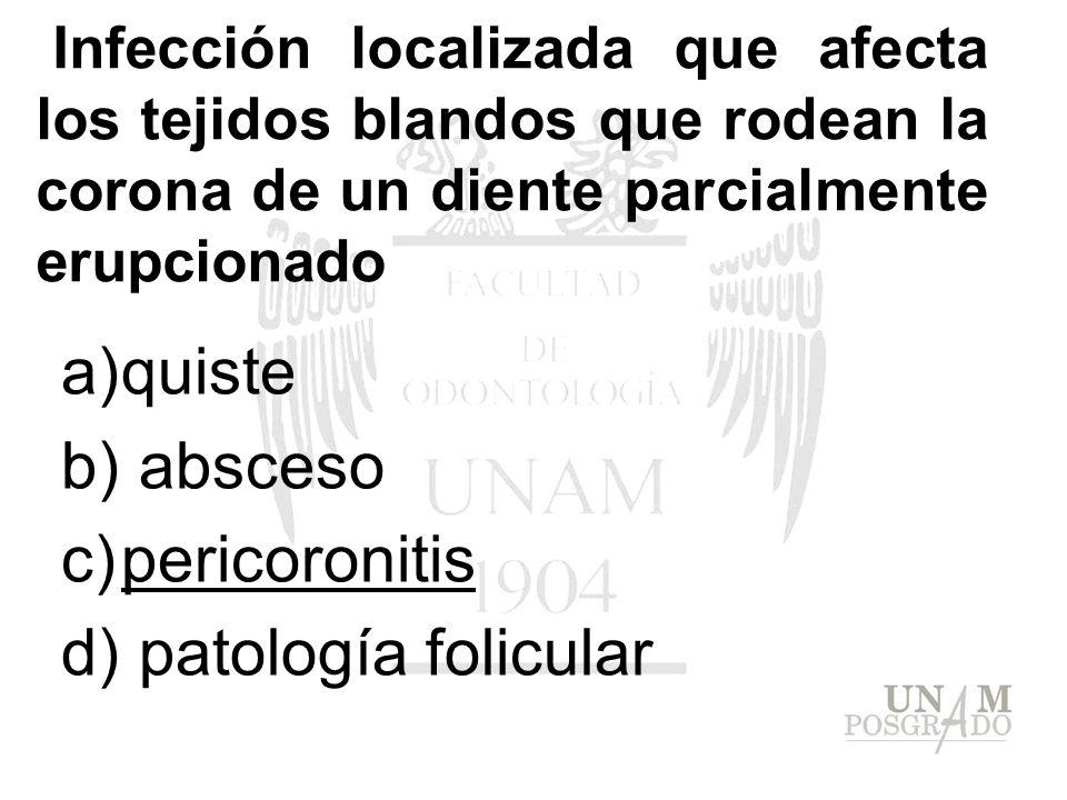 Infección localizada que afecta los tejidos blandos que rodean la corona de un diente parcialmente erupcionado a)quiste b) absceso c)pericoronitis d)
