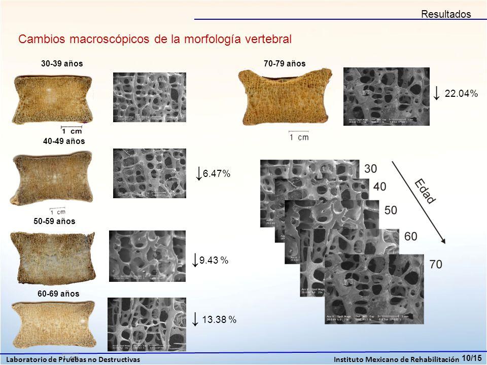 Cambios macroscópicos de la morfología vertebral 10/15 30-39 años 40-49 años 6.47% 50-59 años 9.43 % 60-69 años 70-79 años 13.38 % 22.04% Laboratorio