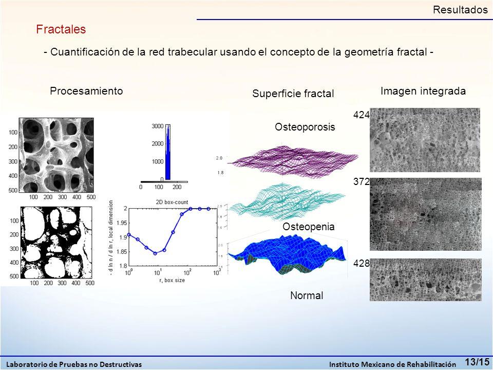 13/15 Fractales Resultados Norma l Osteopenia Osteoporosis - Cuantificación de la red trabecular usando el concepto de la geometría fractal - Superfic