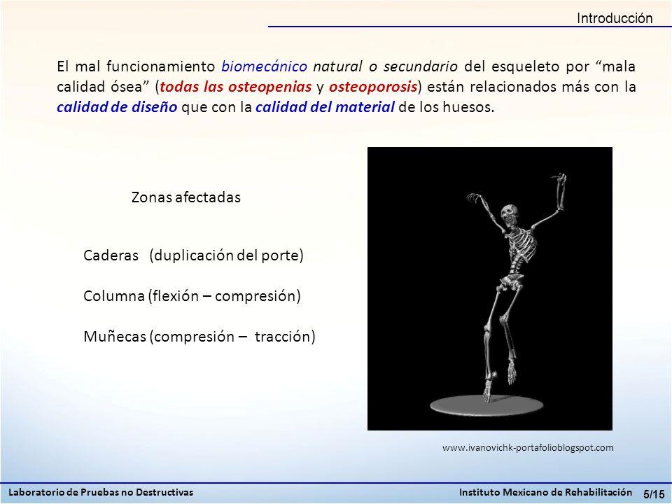 5/15 Zonas afectadas Caderas (duplicación del porte) Columna (flexión – compresión) Muñecas (compresión – tracción) El mal funcionamiento biomecánico