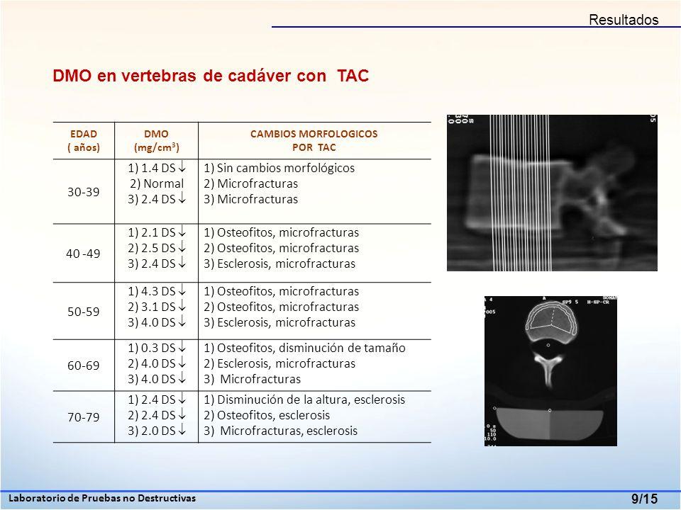 Cambios macroscópicos de la morfología vertebral 10/15 30-39 años 40-49 años 6.47% 50-59 años 9.43 % 60-69 años 70-79 años 13.38 % 22.04% Laboratorio de Pruebas no Destructivas Instituto Mexicano de Rehabilitación Resultados