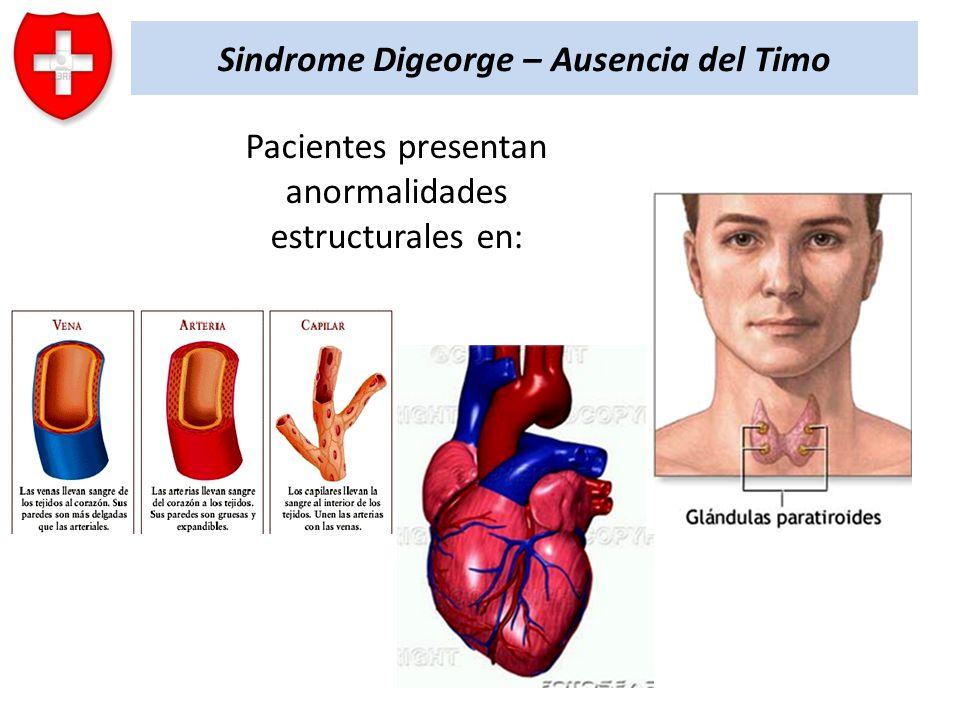 Sindrome Digeorge – Ausencia del Timo Pacientes presentan anormalidades estructurales en: